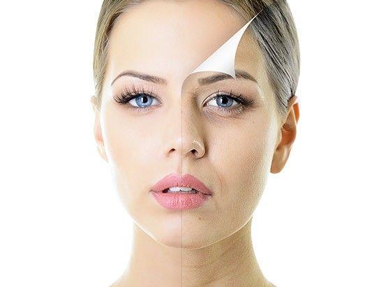 Lipofilling visage - Tourisme médical chirurgie esthétique Tunisie