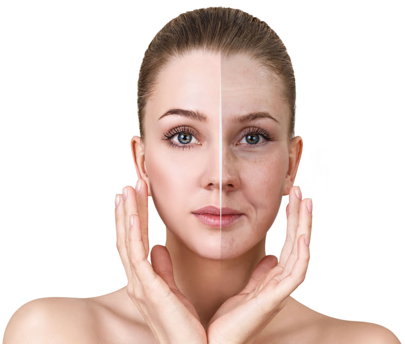 lifting facial tunisie, lifting visage pas cher tunisie, lifting