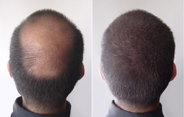 greffe de cheveux, greffe des cheveux tunisie pas cher, greffe