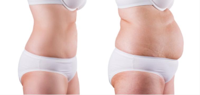 opérations pour maigrir en Tunisie : sleeve gastrique ou bypass
